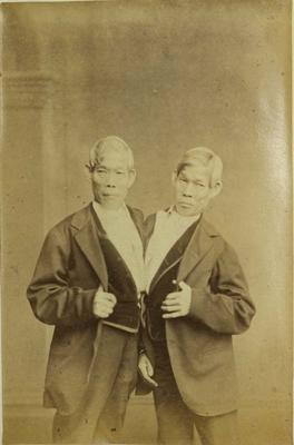 Photograph: Conjoined Twins