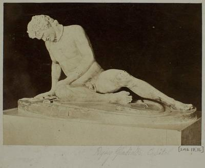 Photograph: Dying Gladiator in Capitol, Front View of Sculpture